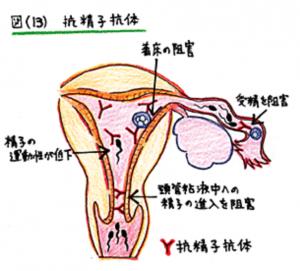 抗精子抗体13