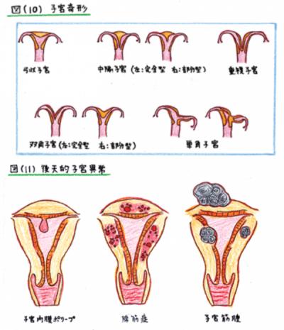 子宮因子10-11